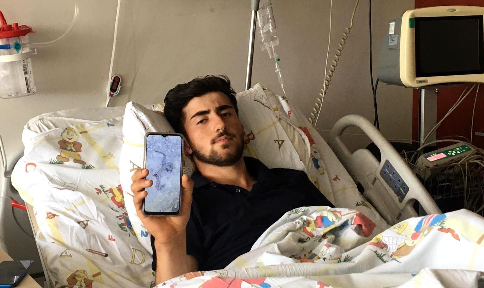 Zehirli yılanın ısırdığı genç Erzurum'da hayata tutundu